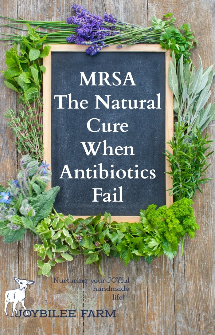 This MRSA natural cure is easy to use at home, without antibiotics, using herbs, essential oil, and other natural remedies that you might already have at home. These 10 natural remedies will give you the best chance to stop a MRSA infection so you can get back to doing the things you love.